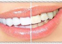 Белые зубы в домашних условиях. Отзывы.