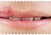 Герпес на губах. Лечение. Причины. Отзывы и результаты лечения.