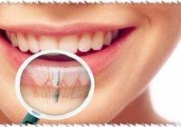 Отзывы и комментарии о зубных имплантантах