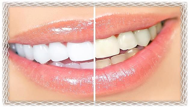 Белые зубы.