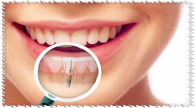 Зубные имплантанты.